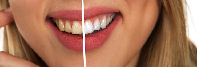 Před a po bělení zubů